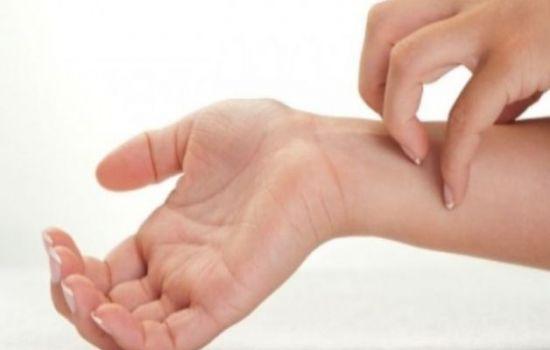 Eczema sulle ginocchia