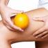 Ritenzione idrica: quali alimenti aiutano la diuresi